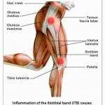 Plantar Fasciitis Heel Pain Could Be Your Friend: Working On The Second Edition Of FitOldDog's Treatment For Plantar Fasciitis