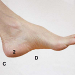 Thirty Years To A Thirty-Second Plantar Fasciitis Cure